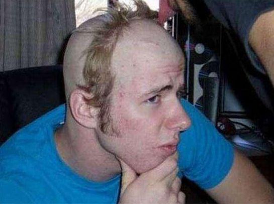 PRP терапии при пересадке волос